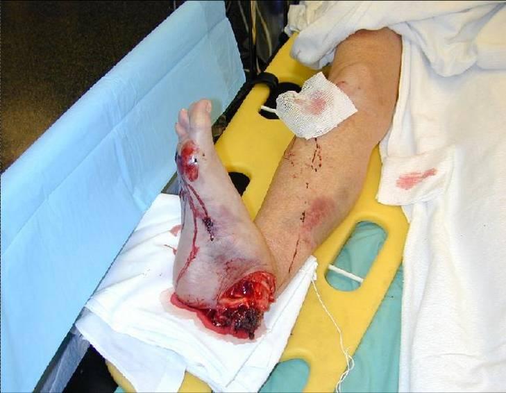 Ankle-Leg Trauma